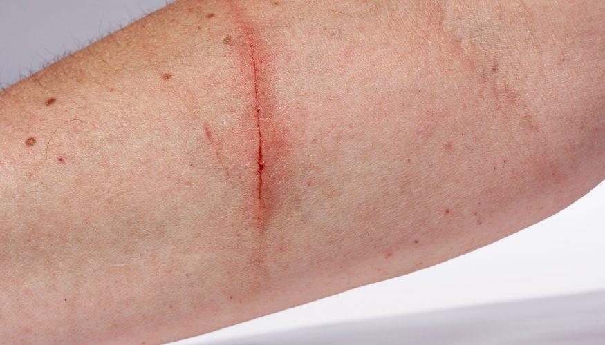 Roter Strich – Anzeichen für eine Blutvergiftung?