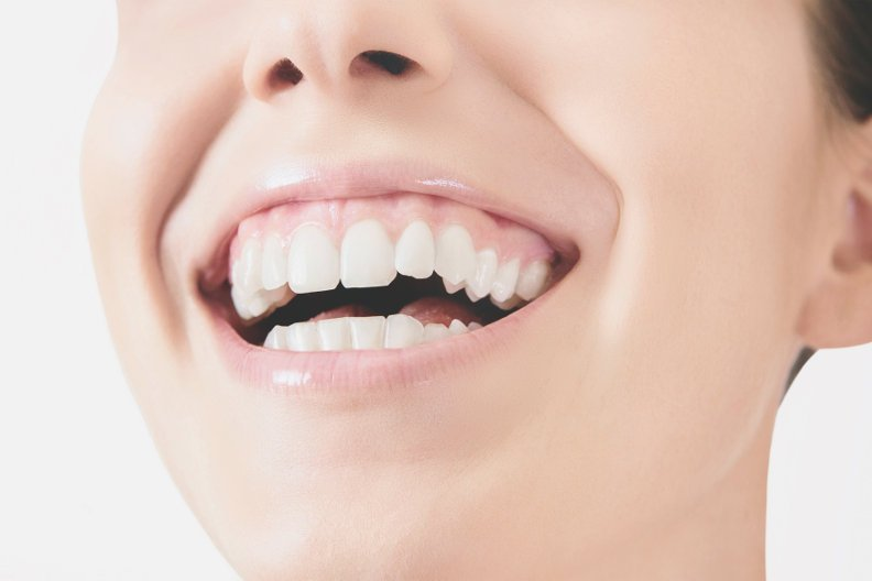 Was bei Zahnfleischbluten dringend zu tun ist und wie Sie wirklich vorbeugen
