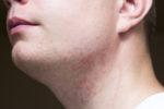 hautirritationen nach dem rasieren im gesicht