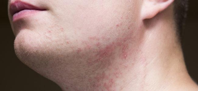 Rasierpickel im Intimbereich: So vermeiden Sie die Hautirritation nach der Rasur