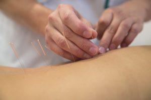 Akupunkturnadeln stecken in einem Rücken