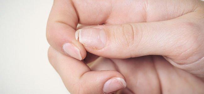 Nagelveränderungen: Ursachen und Behandlung