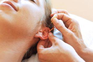 Akupunktur eines Ohres