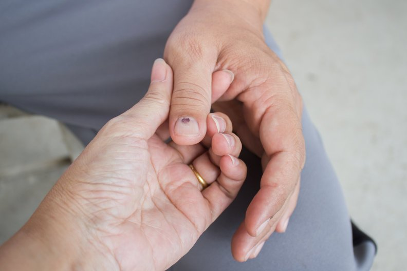 Bluterguss unter dem Nagel – So lässt er sich verhindern