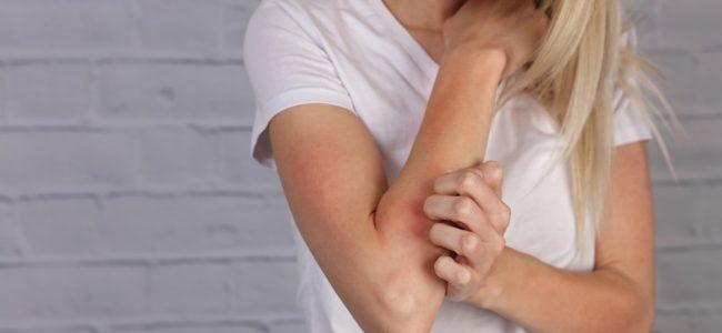 Ekzeme behandeln: Diese Hausmittel verschaffen Linderung