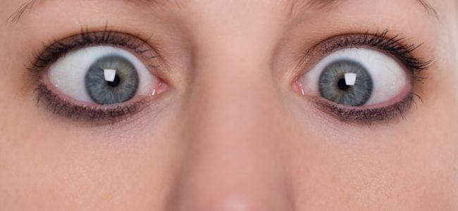 Können beim Schielen die Augen stehen bleiben?
