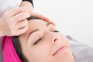 Frau bekommt eine Akupunktur zum abnehmen am Kopf