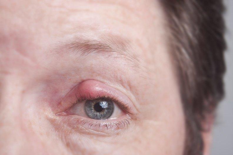 Gerstenkorn im Auge behandeln