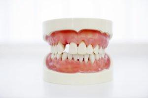 haftcreme zähne