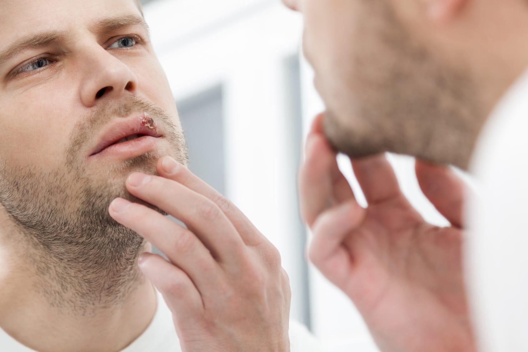 Hausmittel gegen Herpes – 4 Tipps & Tricks