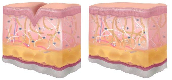 Tipps und Hausmittel gegen alternde Haut