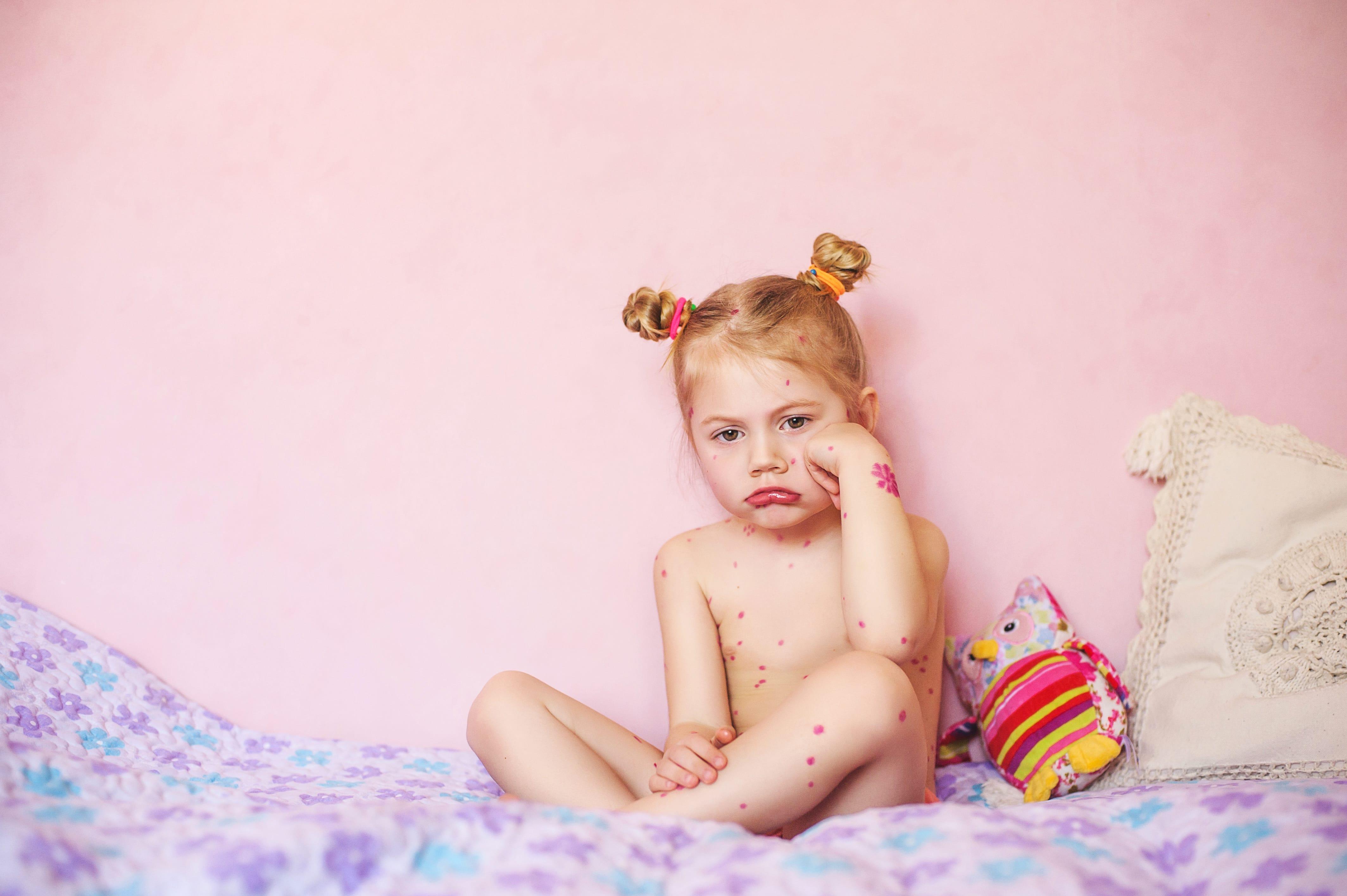 Bekommt man Kinderkrankheiten wirklich nur einmal?