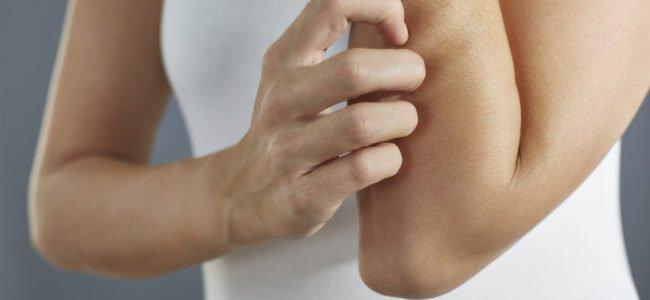 Hausmittel gegen Neurodermitis: Diese Mittel versprechen Hilfe bei Neurodermitis