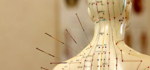 Mit Akupunktur abnehmen: Das bringen die Nadelstiche wirklich