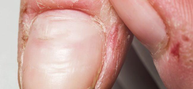 Nagelhaut pflegen: Mittel & Methoden gegen rissige und trockene Nagelhäutchen