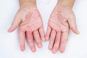 Offene Hände zeigen rissige Stellen