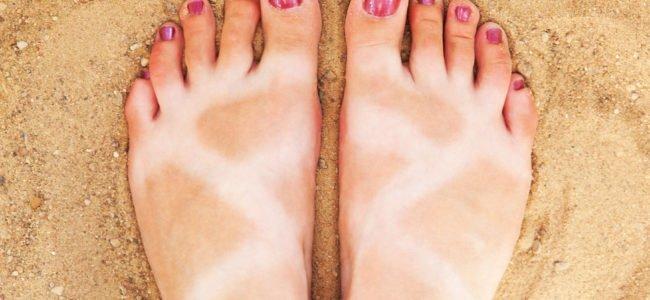 Hausmittel gegen Sonnenbrand – 10 Tipps & Tricks