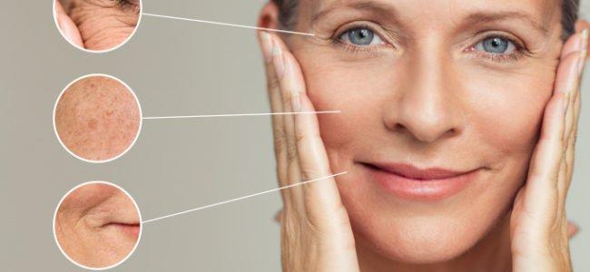 Hautprobleme: Diese Hausmittel helfen, die Haut zu beruhigen