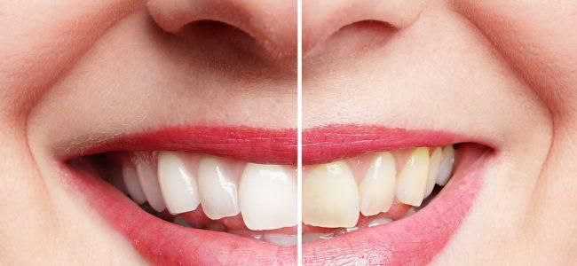 Hausmittel für weiße Zähne: So wirken Backpulver und Co